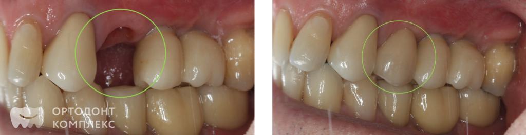 До и после имплантации зуба